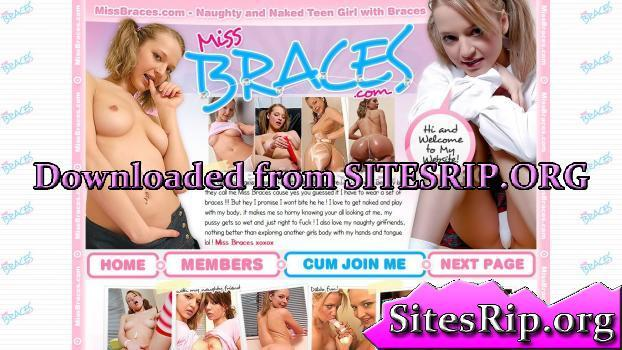 MissBraces – SITERIP